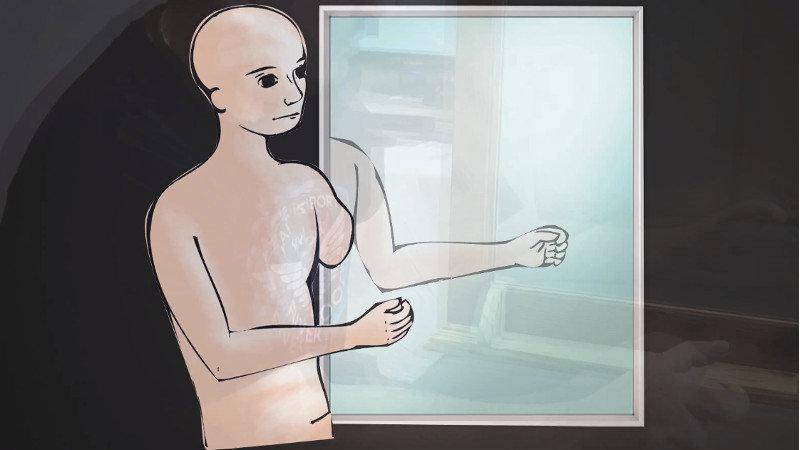 Soigner les maux d'un membre fantôme par la VR