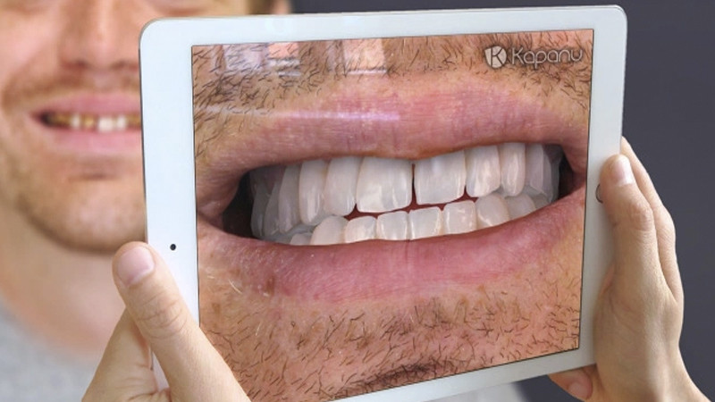 Votre dentiste se met à la réalité augmentée